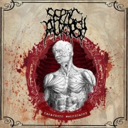 SEPTIC AUTOPSY - CD - Cadaveric Malignancy