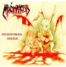 MIXOMATOSIS -CD- Neurofibroma Mixoide