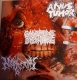 ANUS TUMOR / NEPHRECTOMY / GANGRENE DISCHARGE - 3 way split CD -