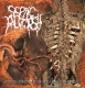 SEPTIC AUTOPSY -CD- Spontaneous Emanation Of Rotting Smell Through Necropsy Process